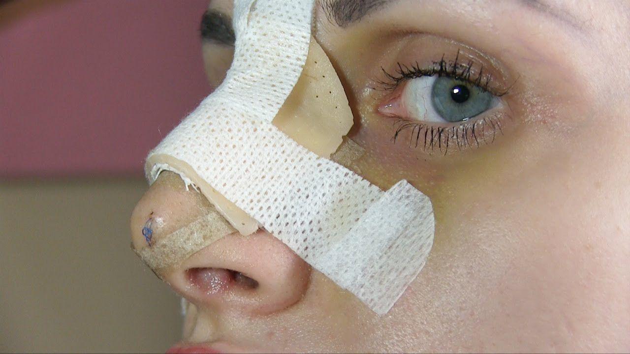 operazione al setto nasale come funziona